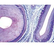 Arterie und Vene, quer - Präparate und Foliensätze