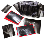 Röntgenbilder eingerichteter Knochen